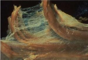 Myofascia
